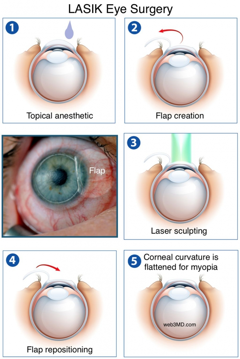 Should You Get LASIK Surgery? What Can Go Wrong?
